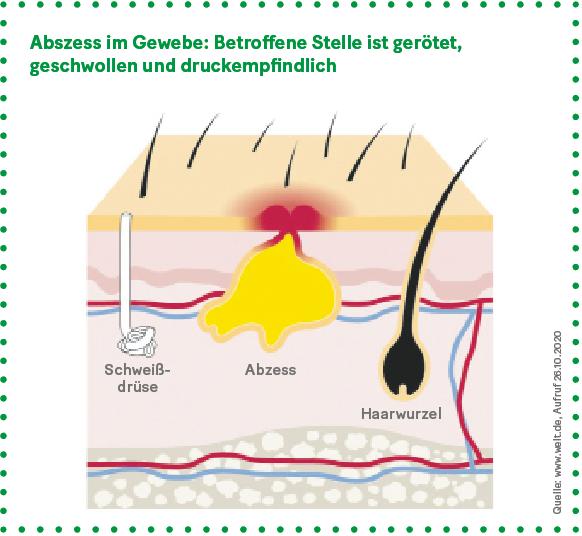 Grafik: Abszess im Gewebe: Betroffene Stelle ist gerötet, geschwollen und druckempfindlich