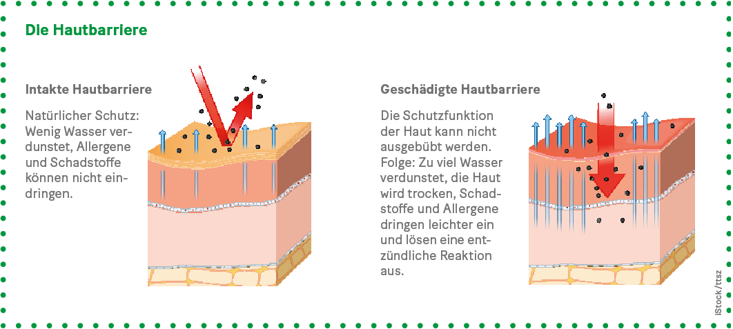 Grafik: Die Hautbarriere