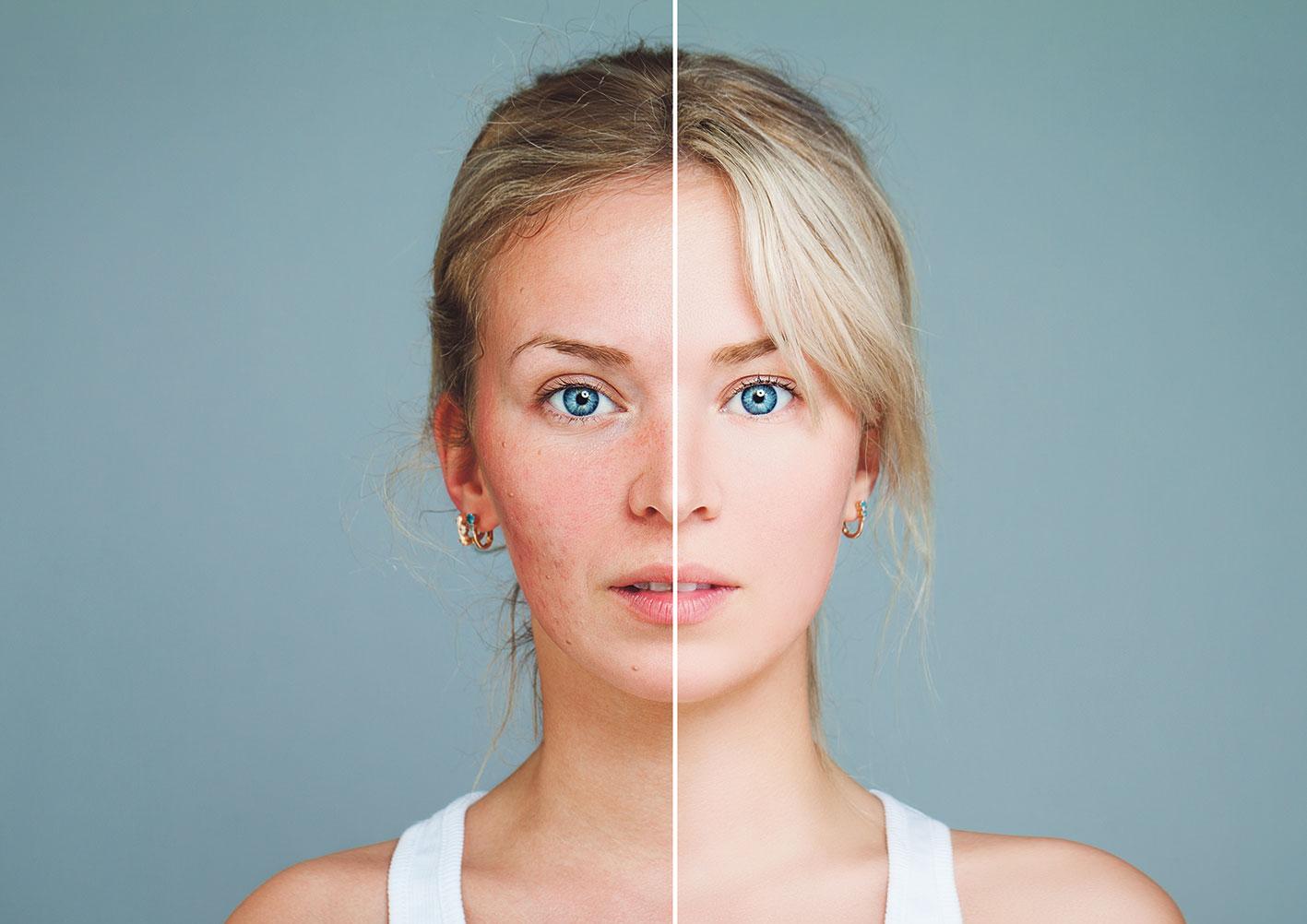 Porträt einer Frau: die eine Hälfte ihres Gesichts ist makellos, die andere gerötet und vernarbt.