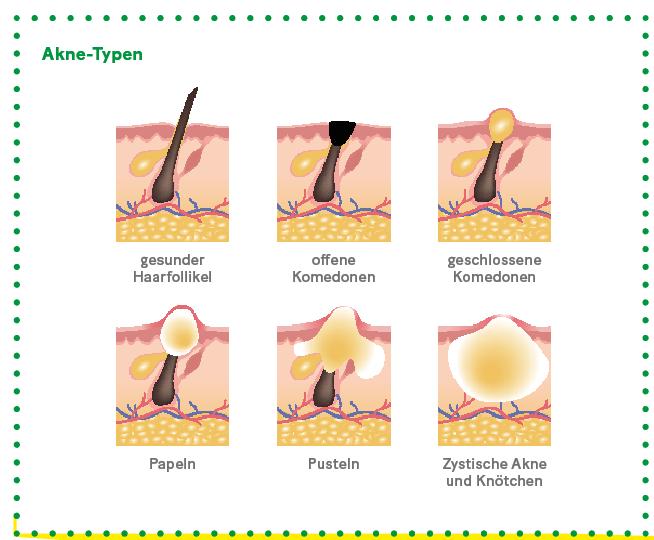 Grafik: Darstellung von Akne Arten