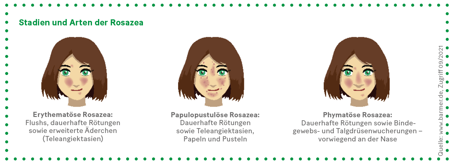 Grafik: Stadien und Arten der Rosazea