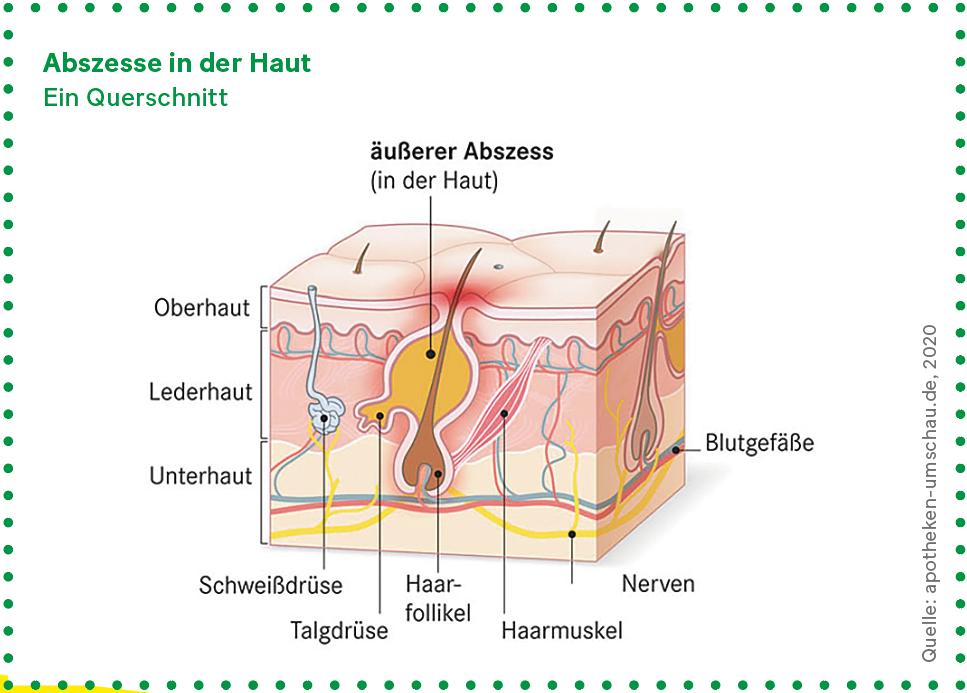 Grafik: Querschnitt der Haut mit einem Abszess
