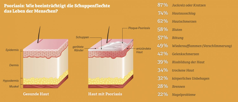Grafik: Wie beeinträchtigt die Schuppenflechte (Psoriasis) das Leben der Menschen?