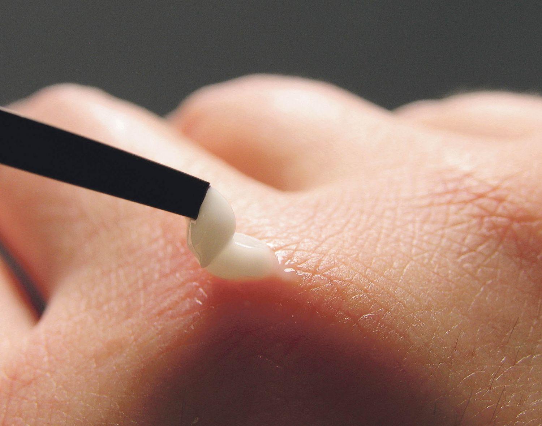 Mit einer Pinzette wird ein Hautstück von der Hand (betroffen vom Chronischen Handekzem) entfernt