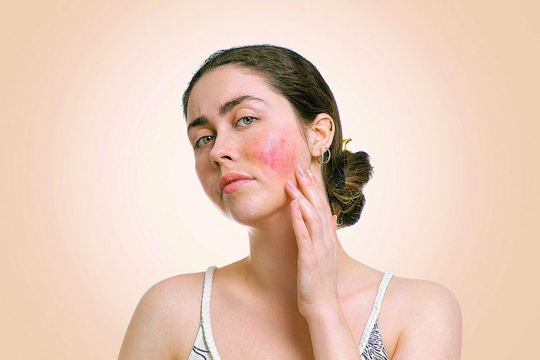 Frau mit Rötungen im Gesicht.