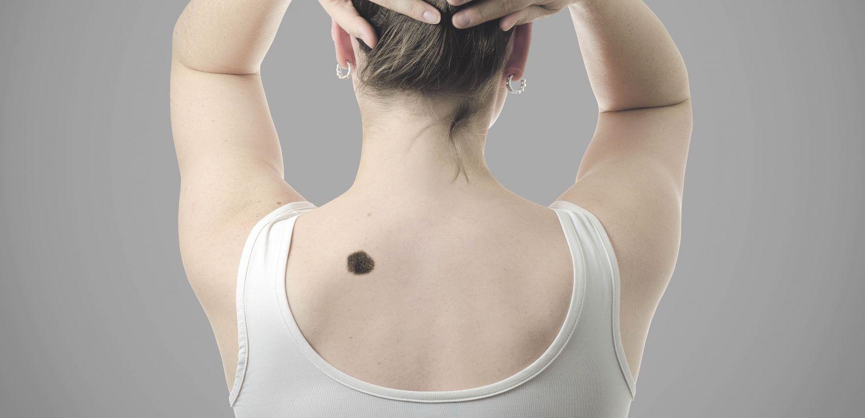 Dunkler, schwarzer Leberfleck am Rücken - Hautkrebsvorsorge ist wichtig