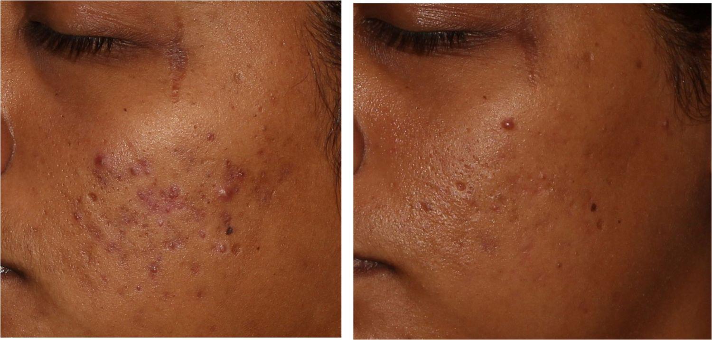Hautbild vor und nach Aknenarben-Therapie