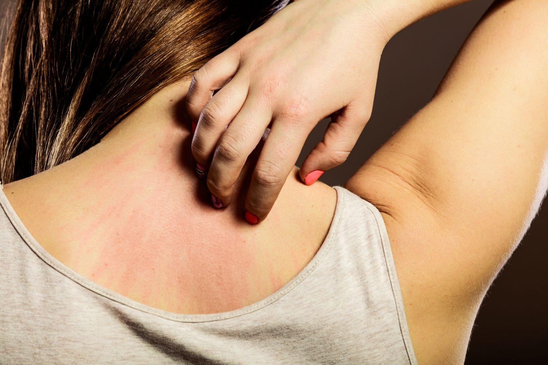 Frau kratzt sich am bereits roten Rücken; Thema: Hautprobleme
