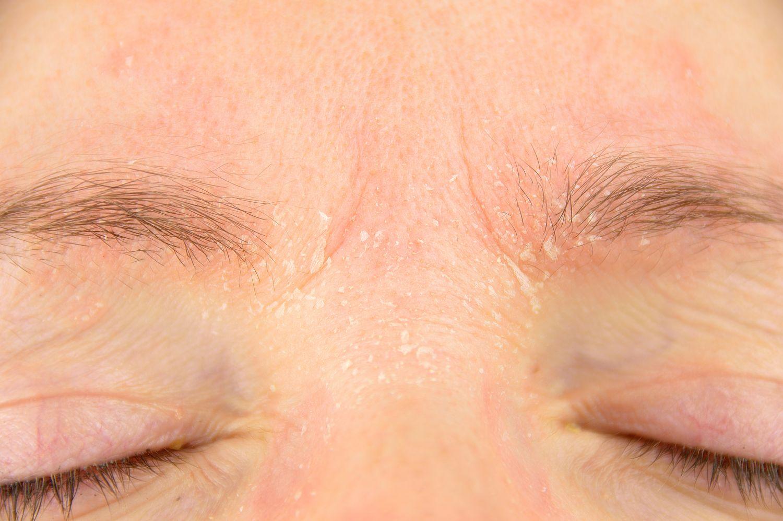 Trockene Haustelle im Gesicht; Thema: Ursachen von Psoriasis