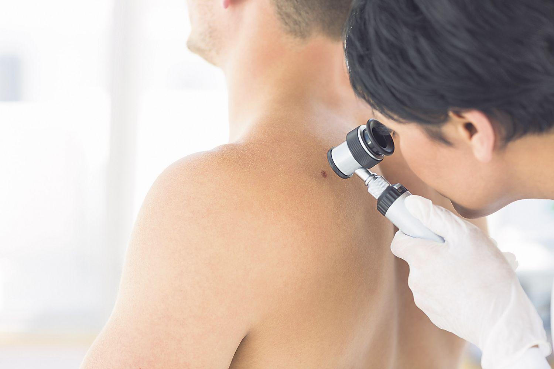 Hautärztin untersucht auffällige Hautstellen; Thema: Hautkrebstherapie und dendritische Zellen
