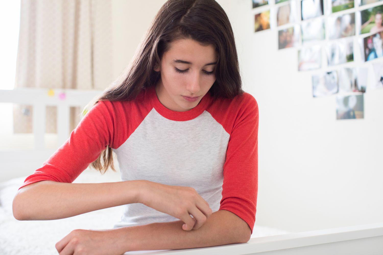 Ein Mädchen kratzt sich am Arm
