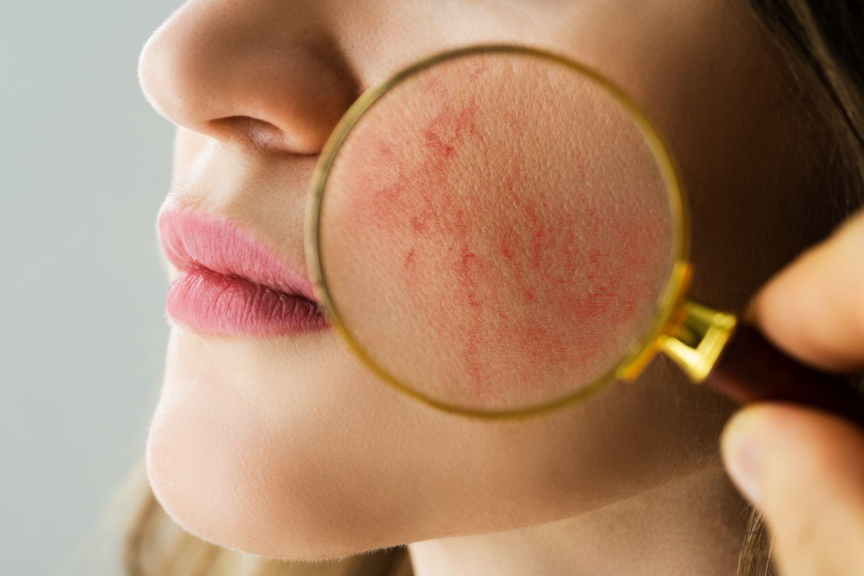 Mit einer Lupe vergrößerte Hautpartie, die von Rosazea betroffen sein könnte